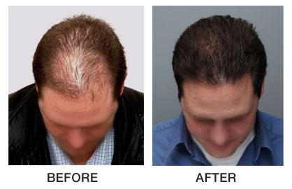 Image result for kerastase densifique homme treatment review