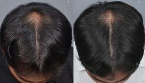 haircenter-3049-1