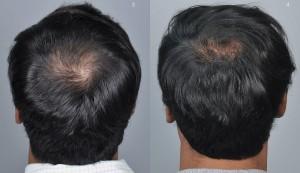 haircenter-3049-2