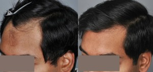 haircenter-3049-4