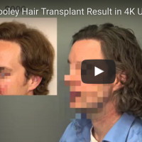 hair-transplant-video-documentation