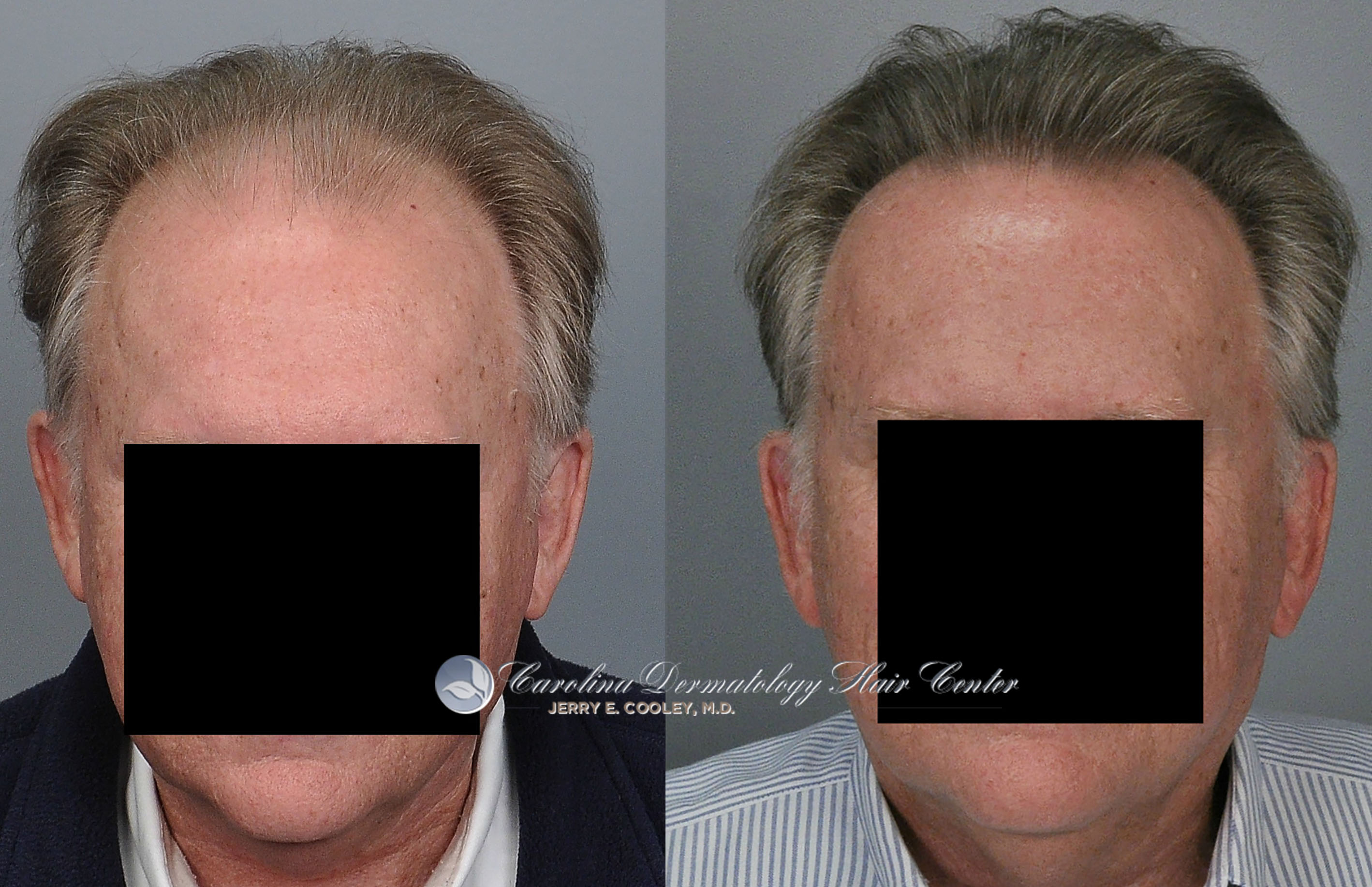 Jerry Cooley MD 3877 Grafts FUT e Year BaldTruthTalk